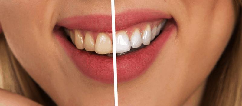 elektrische tandenborstel 800x350px