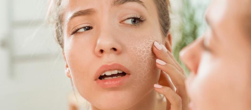 Alles over de beste serums voor een droge huid