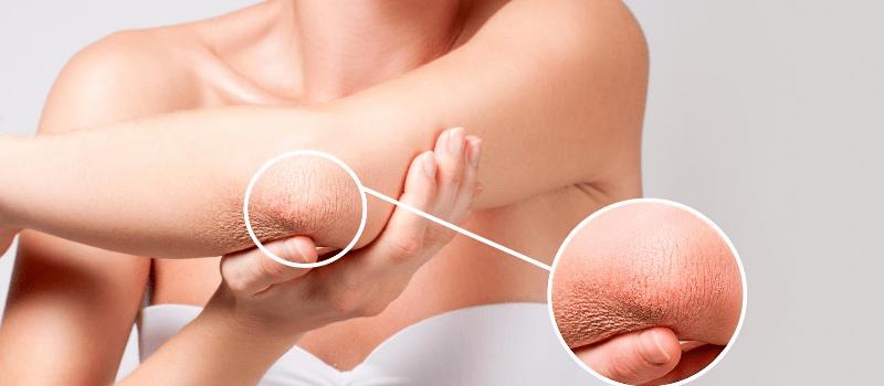 Wat zijn serums voor een droge huid